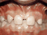 missing lateral incisors before